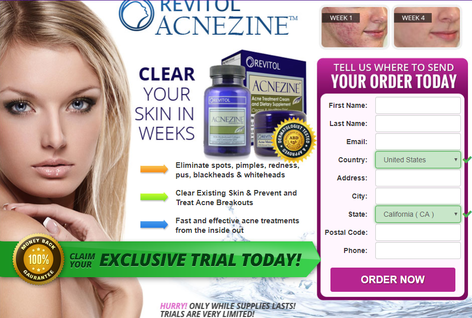 Blackheads And Pimples Treatment Revitol Acnezine Short